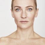 Botox Berlin » Effektiv & schonend | Beauty-Rebellin
