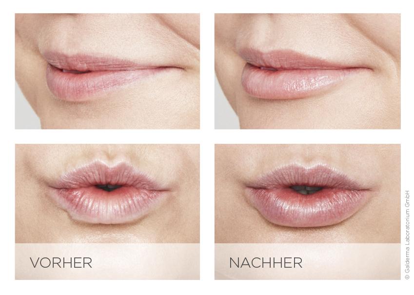 Lippenvolumen Berlin » Beauty-Rebellin