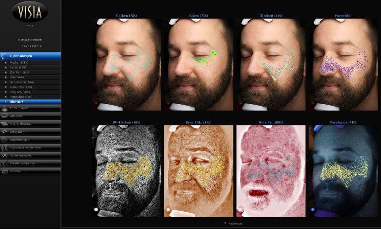 Hautbild vor der Behandlung