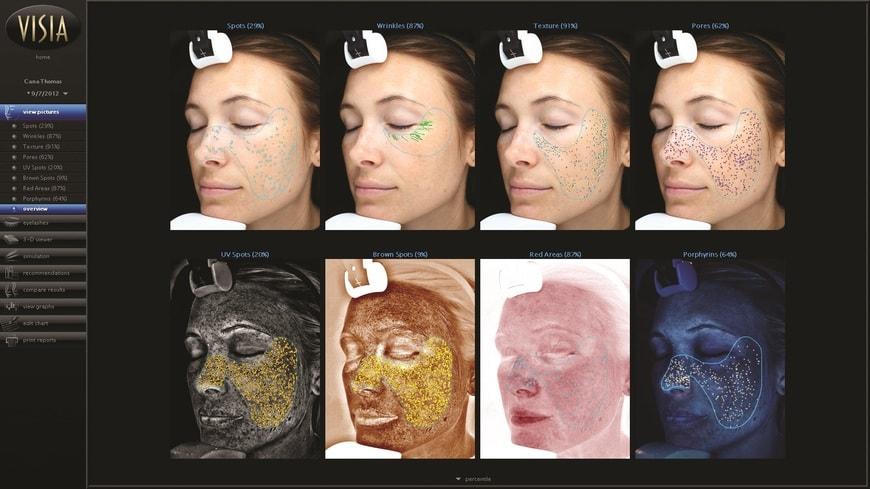 VISIA - Hautanalyse Gerät